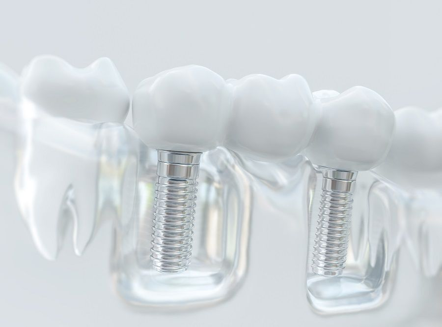 Dental Implant Surgery Recovery: What to Expect