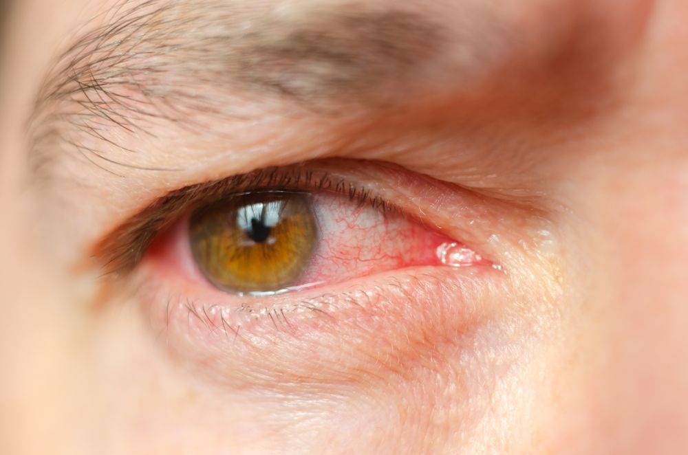 What Are Symptoms for Common Eye Infections?