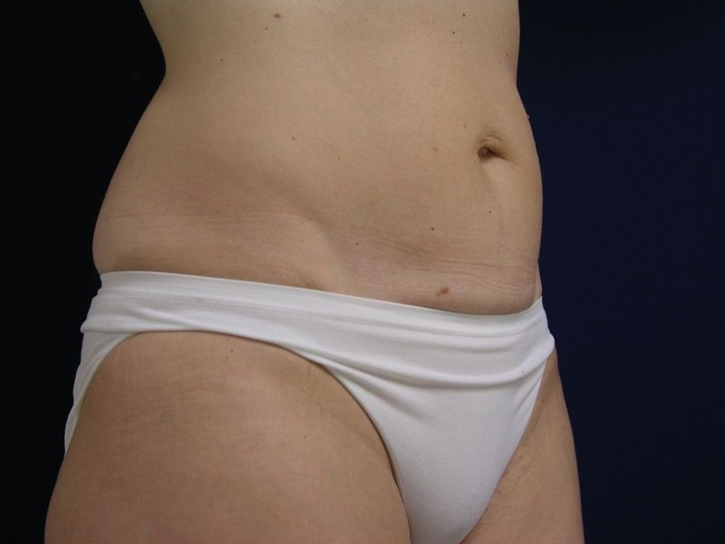 Before Mini Tummy Tuck