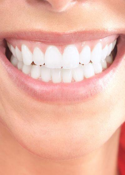 smile design results