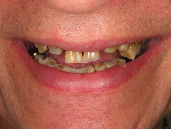 the picture of man's teeth before