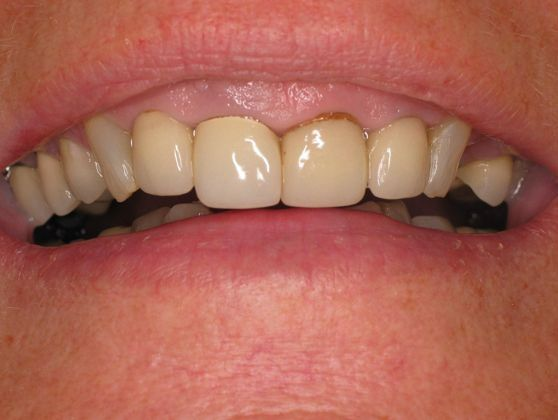 the picture of woman's teeth before