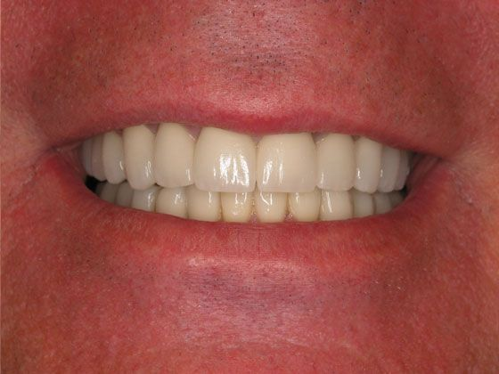 the picture of a man's teeth after