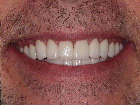 teeth for after in porcelain veneers