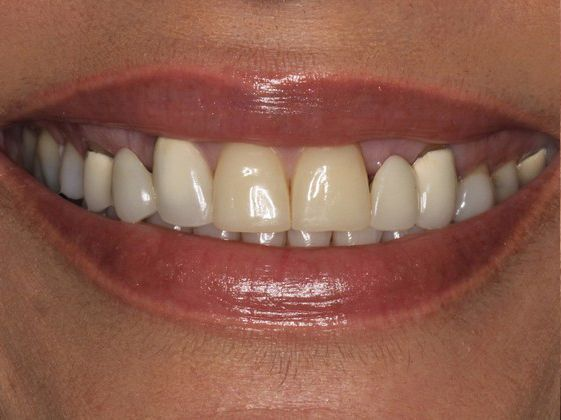 the picture of girl's teeth for before in porcelain crowns