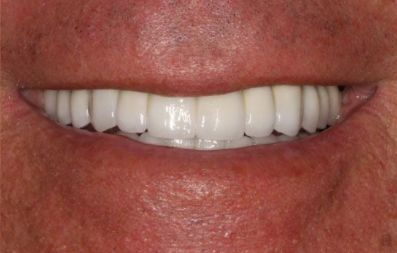 the picture of a man's teeth for after