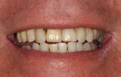 the picture of a man's teeth for before