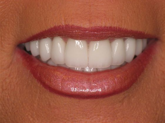 the picture of girl's teeth for after