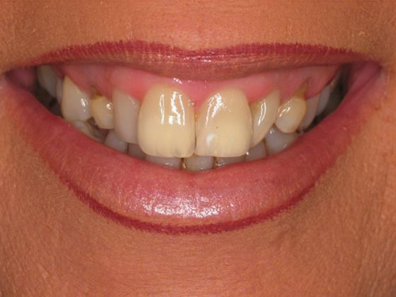 the picture of girl's teeth for before