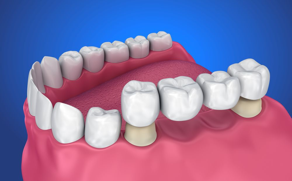 About Cosmetic Dental Bridges in Jupiter, FL