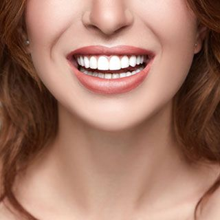 Porcelain Veneers vs. Porcelain Crowns