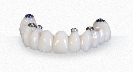 Porcelain Implant Bridge