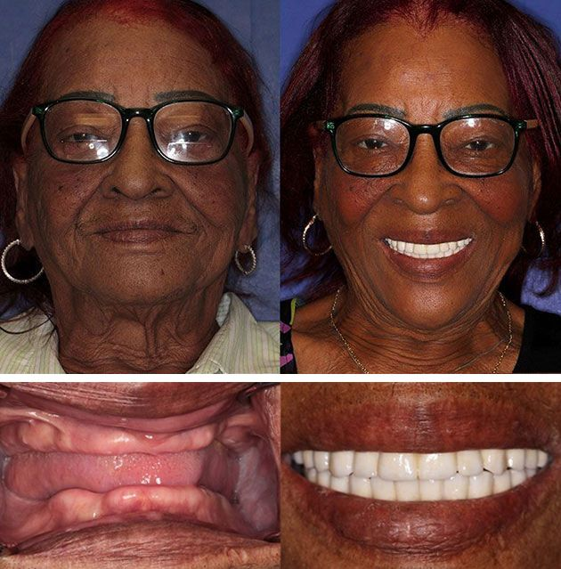 Before Amp After Smile Gallery Cosmetic Dentist Palm Beach