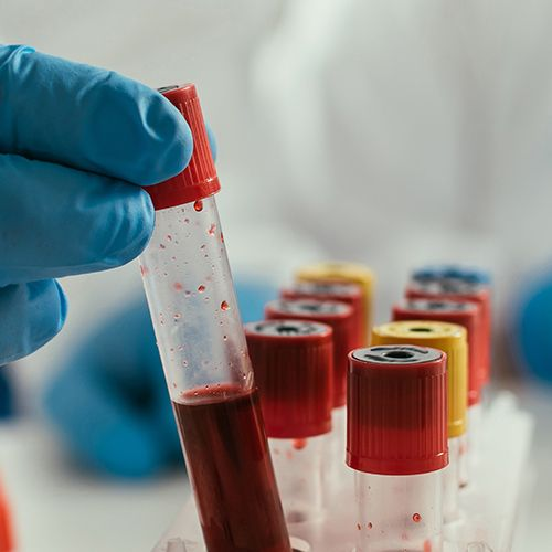 Blood Chemistry Analysis and Nutrition