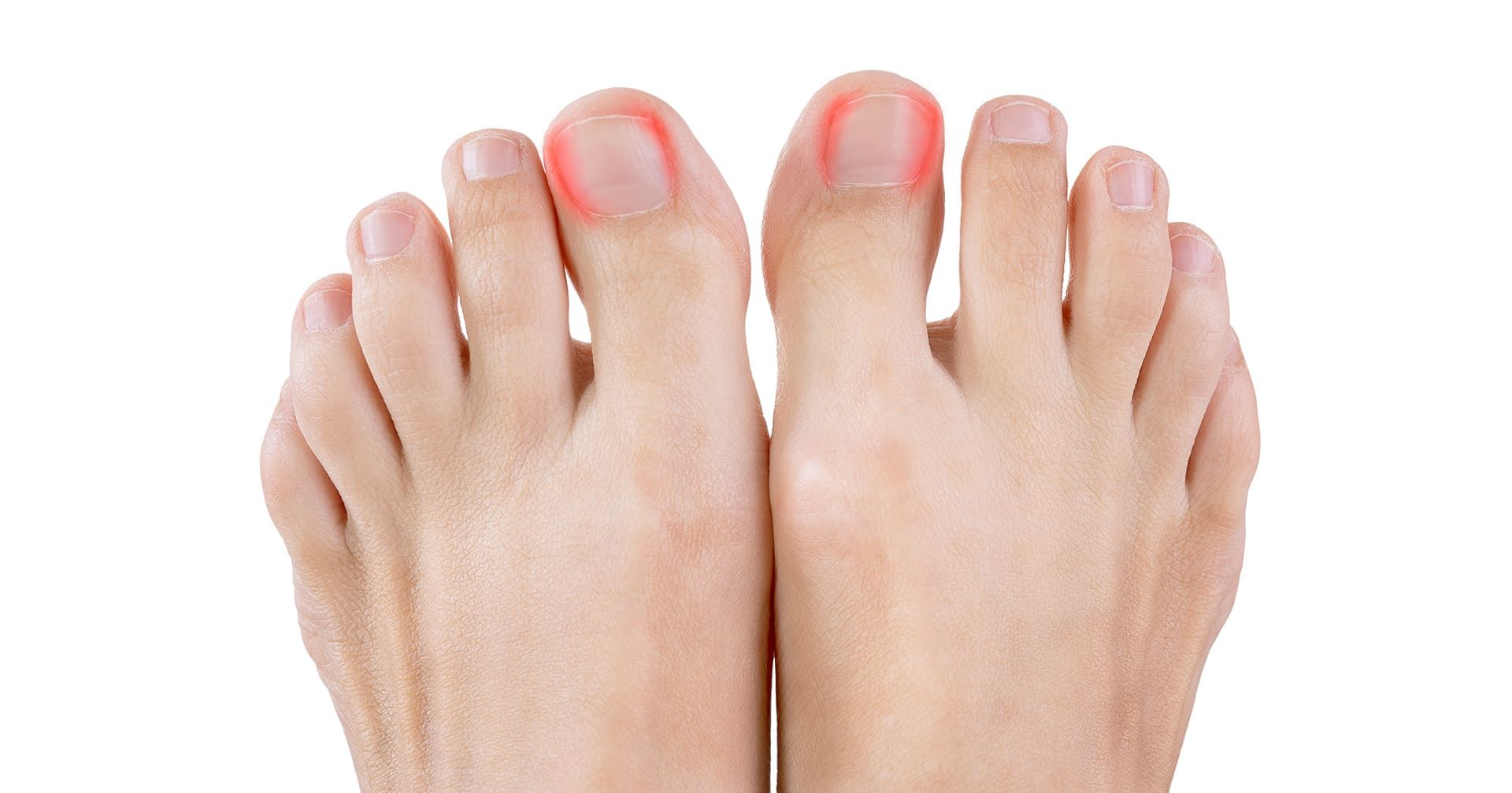 Get Relief from Ingrown nails now!