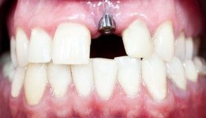 Can You Get Dental Implants Right After Tooth Extractions Palm Beach Gardens