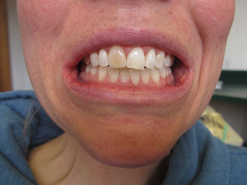 before female veneer procedure