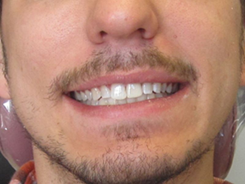 after male veneer procedure