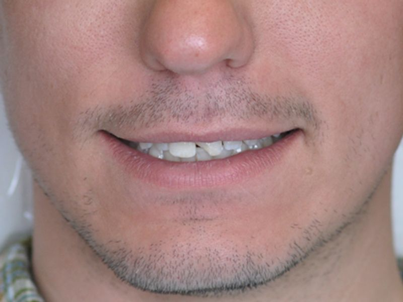 before male veneer procedure