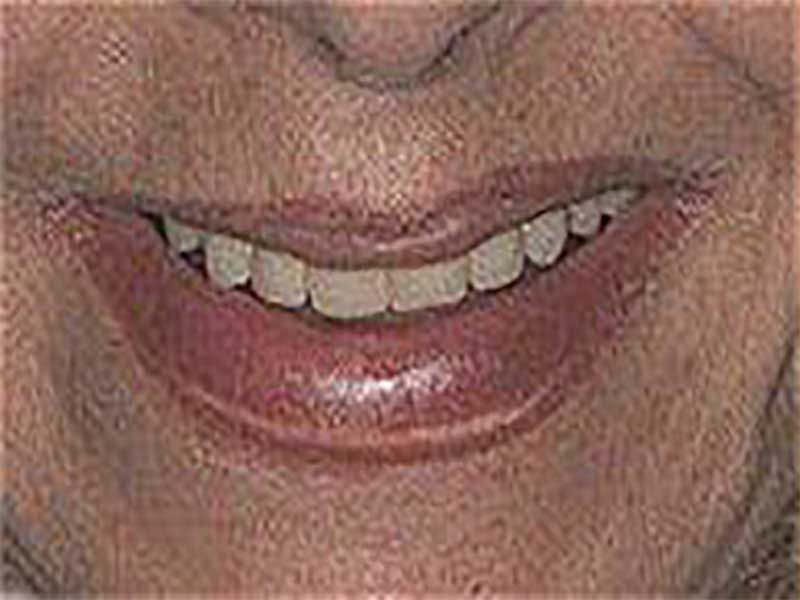 Before porcelain crown dental procedure