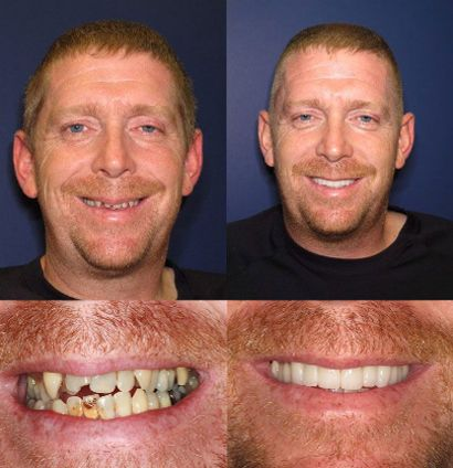 Todd - Full Mouth Cosmetic Restoration