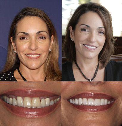 Hortensia - Complete Smile Makeover
