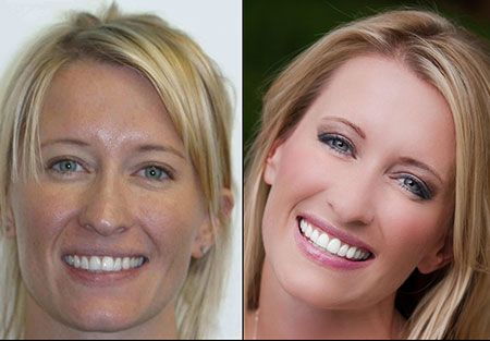 Super Fast Invisalign dentist in denver