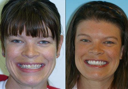 Veneers dentist in denver