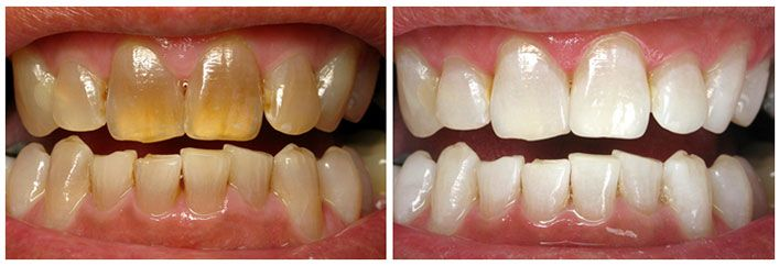 cosmetic dentistry before and after pictures