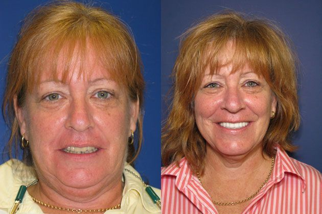 teeth bleaching with laser