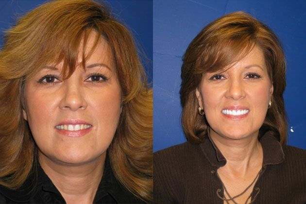 dental implant before and after woman