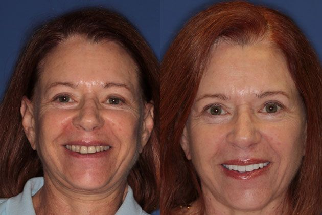 before images for full mouth reconstruction