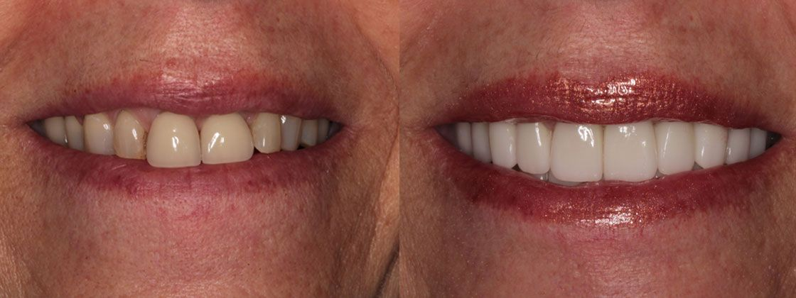 after images for full mouth reconstruction