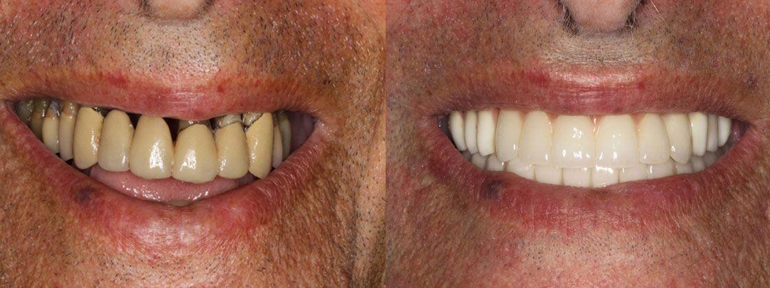 dental implants after photos