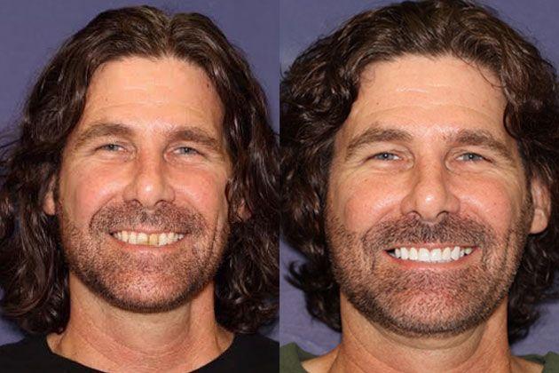 teeth improvements