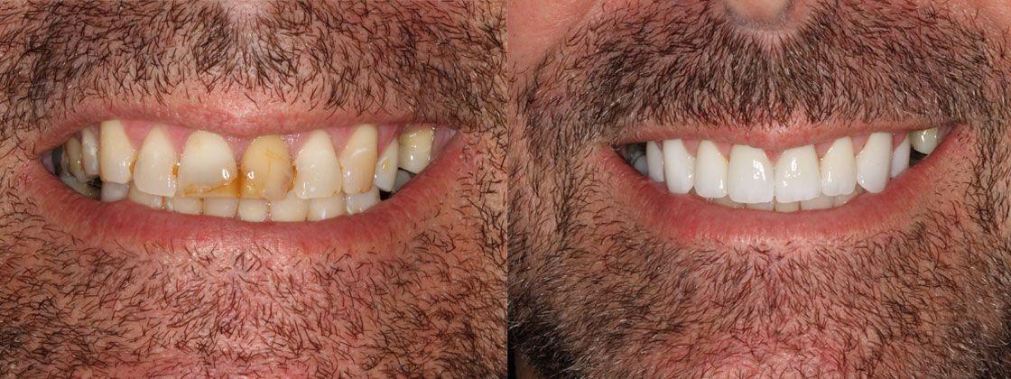 teeth dental work