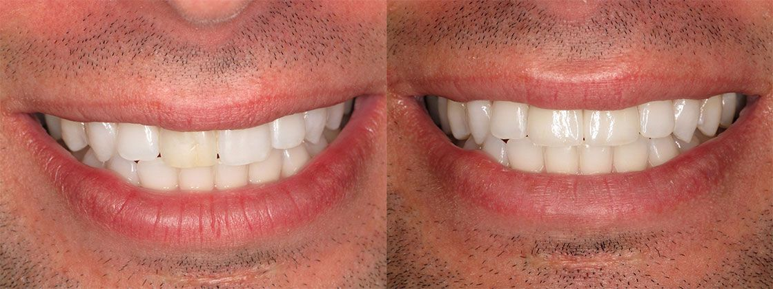 before and after dental pictures