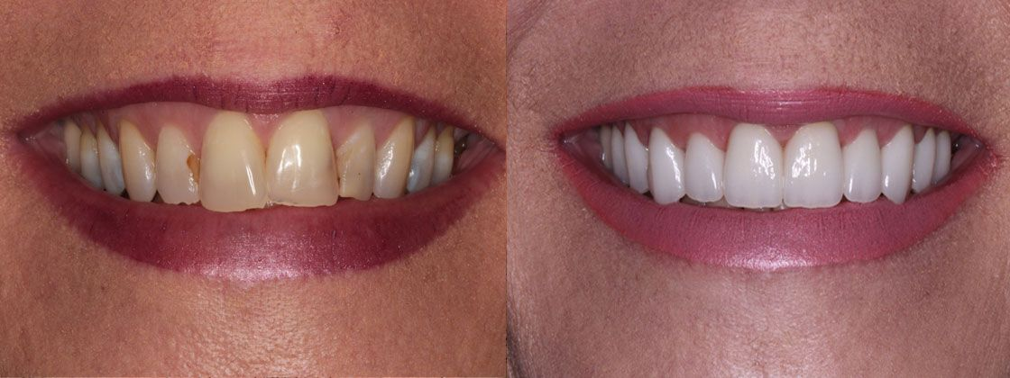 dental case before and after