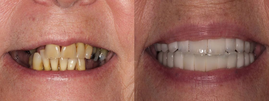 before and after dental images