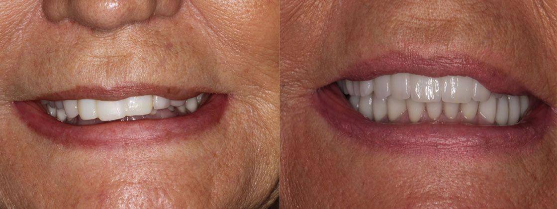dental work images