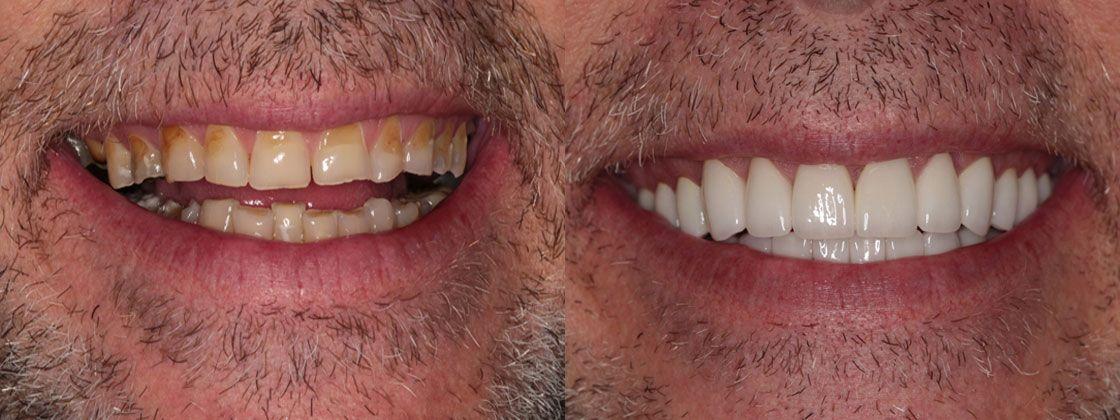 dental work results