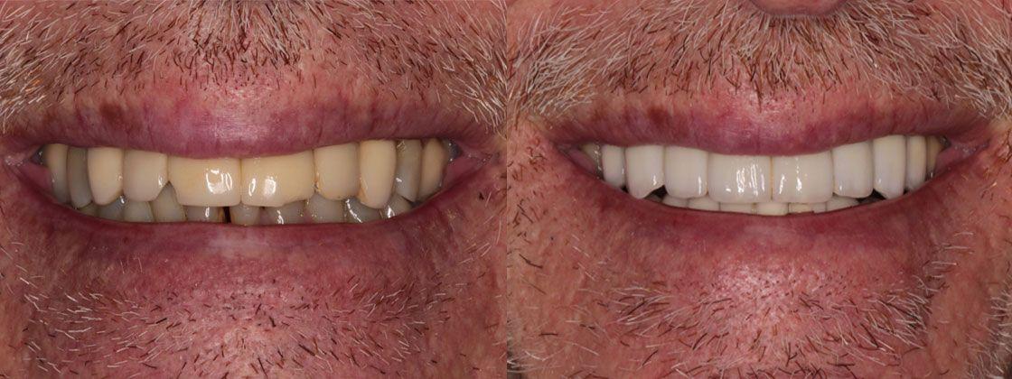 dental case for patients