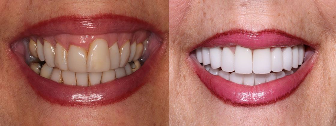 smile makeover results