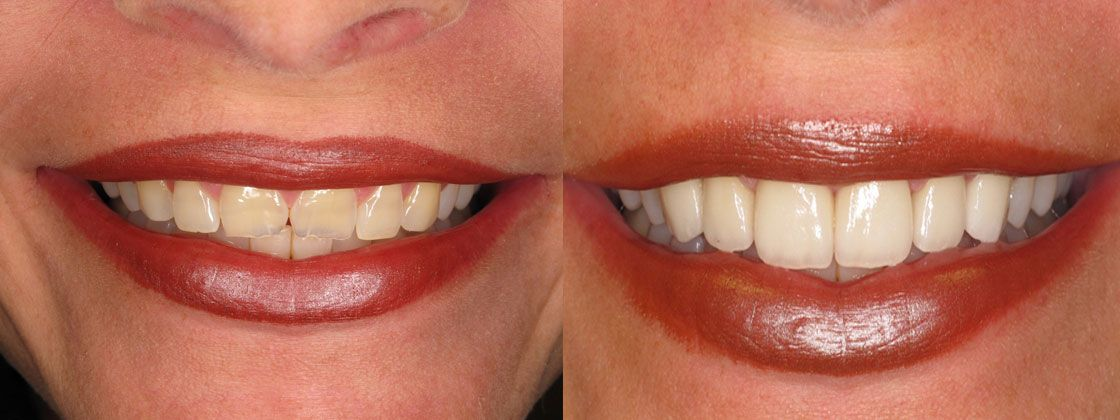 smile makeover results images
