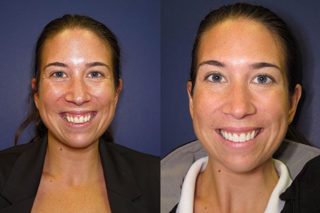 teeth repositioning