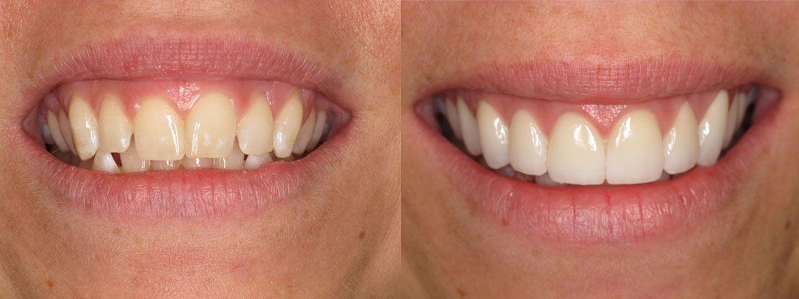 dental results