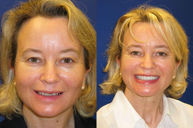 dental implants before images