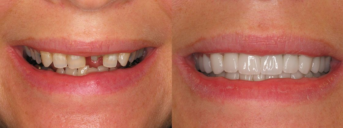 after dental implants images