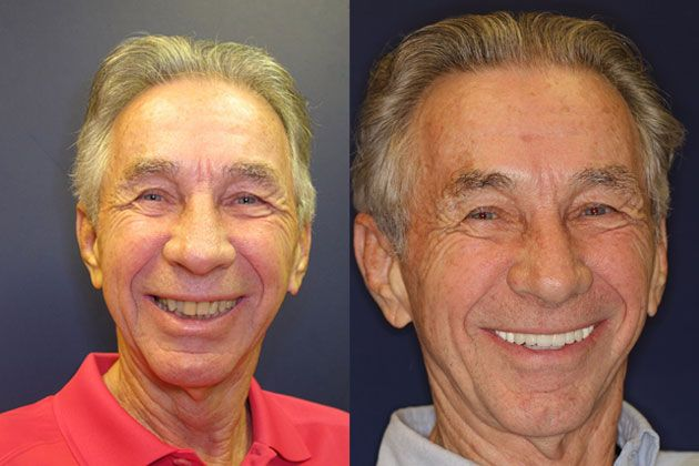 dental implants before pictures