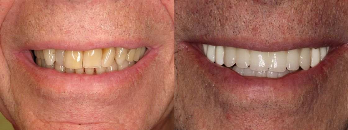 after dental implants pictures